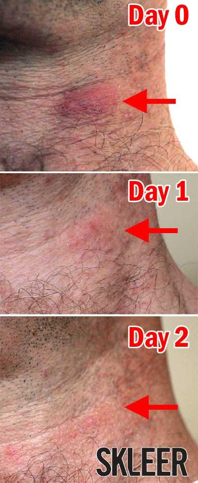 Quick Relief from Spider Bites. Spider Bite Treatment using SKLEER.