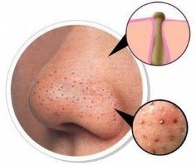 How To Prevent Blackheads From Coming Back!