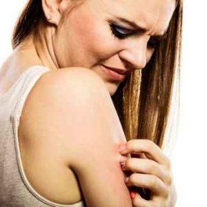 Itchy Skin From Eczema