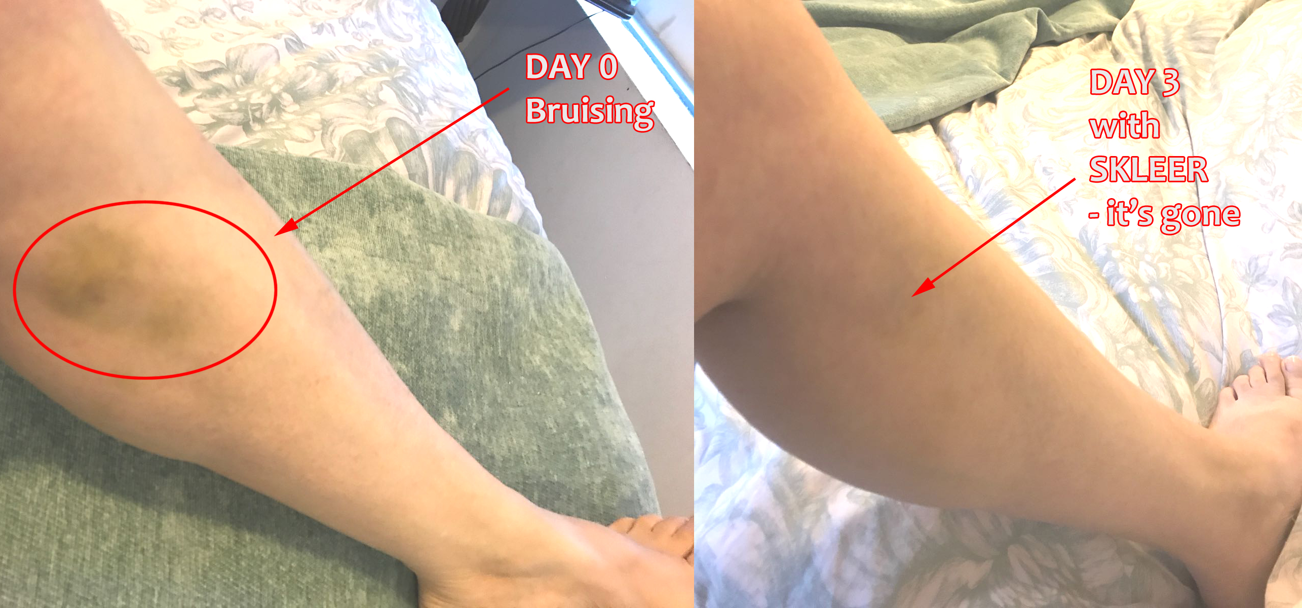 Bruising Before And After With SKLEER