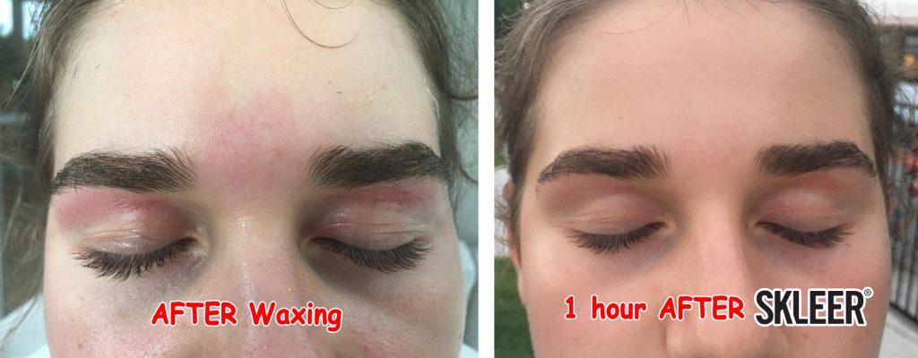 Eyebrow Waxing Soothed & Restored with SKLEER