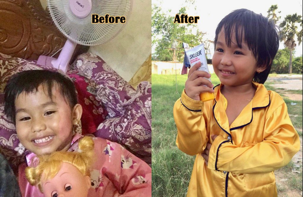 Facial Burn on child before and after SKLEER